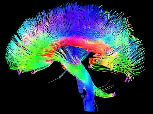 technologicall brain